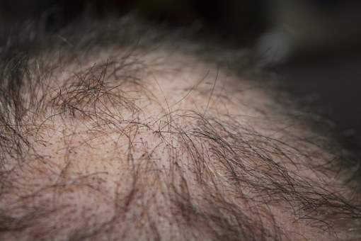 Hair, Man, Hair Loss, Head, Hair Loss